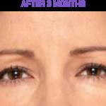 Botox After 3 Months