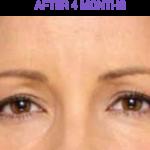 Botox After 4 Months