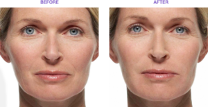 Cosmeticinjections Radiesse Casestudy01 Eros Beauty