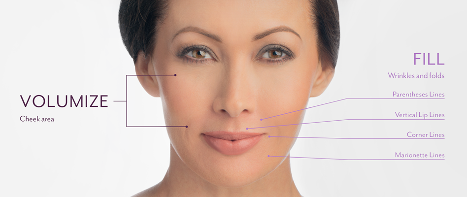 Volumize and Fill Areas on the Face with Juvederm