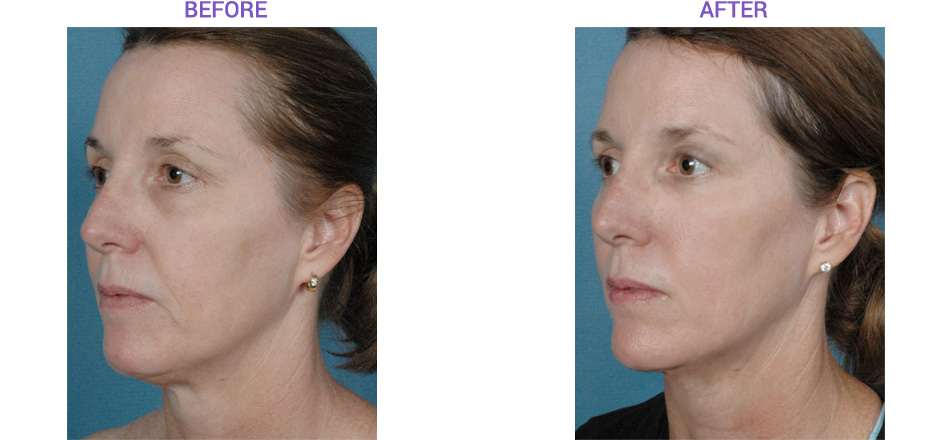 Facial Before and After with Sublative Laser
