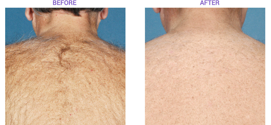 Laser Hair Removal with Elos