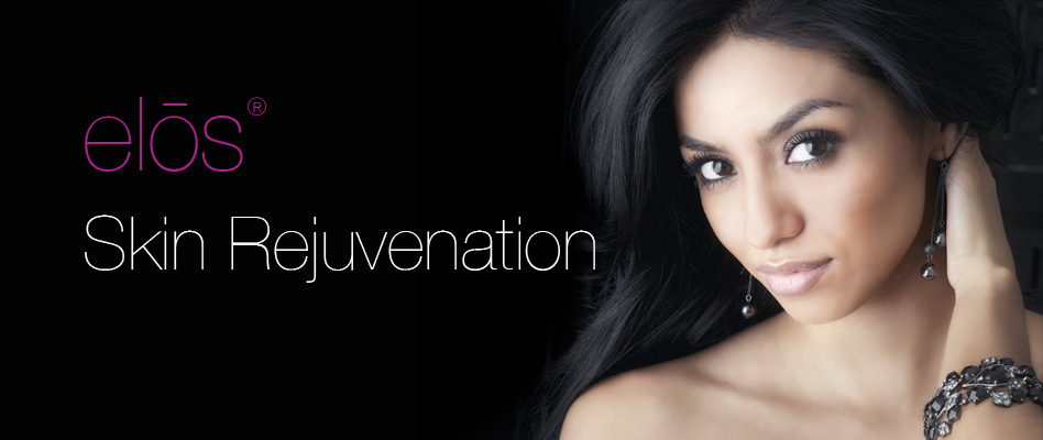 Laser Skin Rejuvenation with Elos