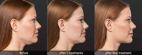 Kybella Treatments