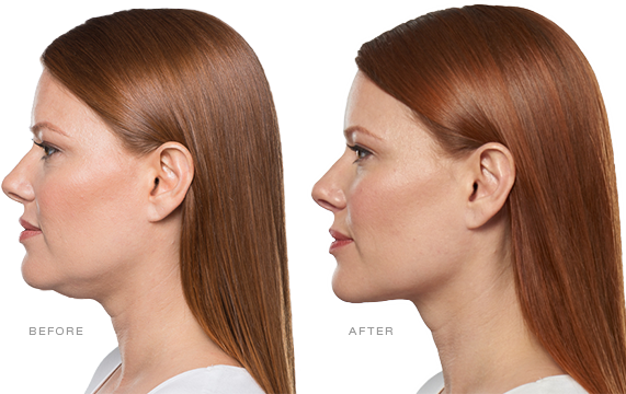 Kybella Treatment Mission Valley