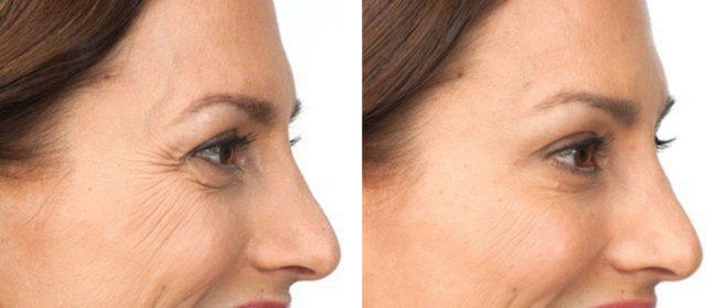 Botox Mission Valley