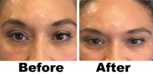 Fillers in Mission Valley