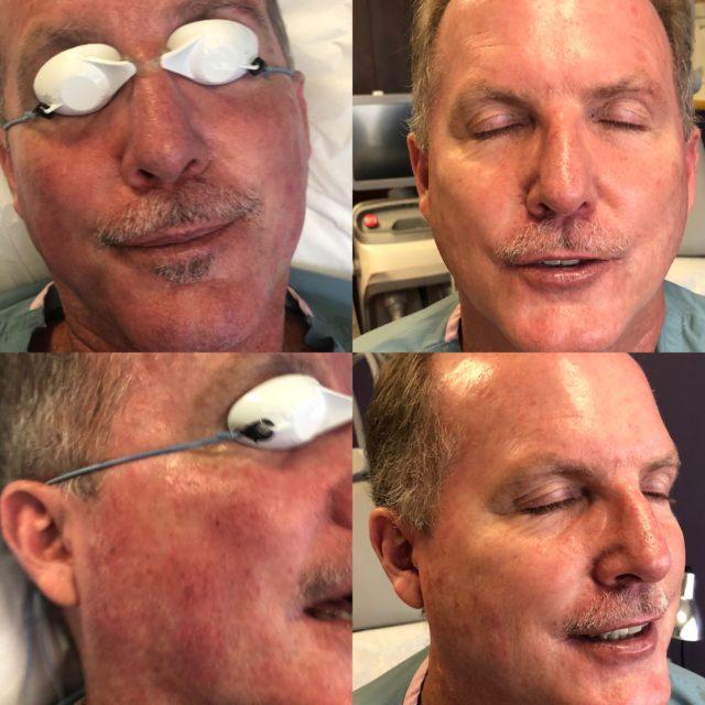 Skin Care San Diego